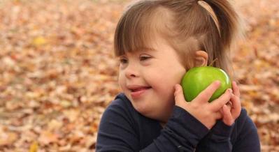 Yuk, Bantu Anak Down Syndrome Mengembangkan Potensinya dengan Mengenali Ciri-Cirinya