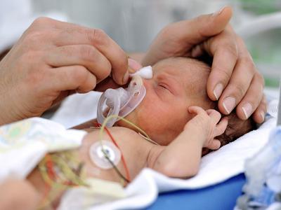 5 Masalah Umum yang Terjadi Pada Bayi Prematur