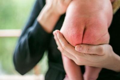 Hati-hati Ladies, Inilah 6 Jenis Penyakit Bayi Baru Lahir yang Harus Diwaspadai!