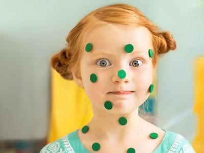 2) Retinablastoma