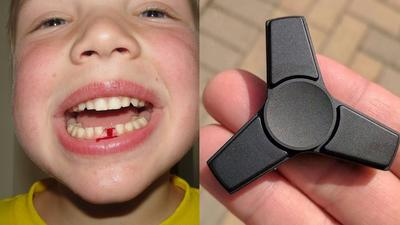 Nggak Nyangka! Fidget Spinner Ternyata Masuk Dalam Daftar Mainan Anak Yang Berbahaya