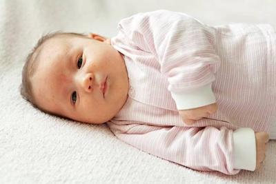 Jangan Anggap Sepele! Ini Penyebab dan Cara Mengatasi Biang Keringat Pada Anak dengan Cepat