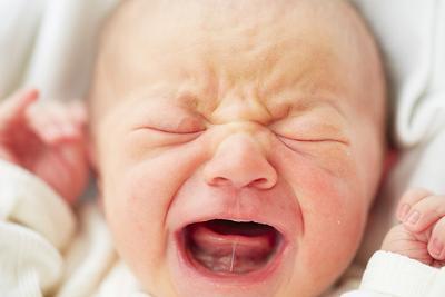 Cari Tahu Penyebab dan Cara Mengobati Tongue Tie Atau Lidah Terikat Pada Bayi Yuk, Moms!