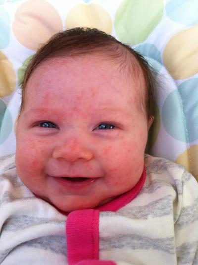 Tips Mengatasi Jerawat Bayi