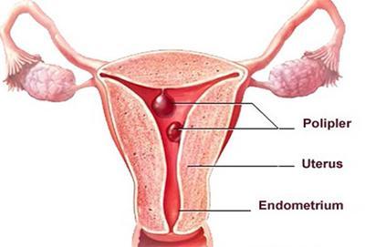 Waspada, Ini Dia Bahaya Yang Disebabkan Menstruasi Tidak Teratur