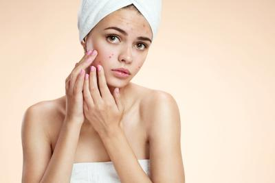 Ibu Hamil Jerawatan? Atasi dengan Tips Skincare Ini!