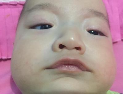 Review; Alat Pembersih Hidung untuk Bayi