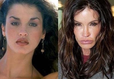 Gagal Operasi Plastik, 5 Artis Berikut Ini Malah Kehilangan Wajah Cantiknya Seperti Ini!