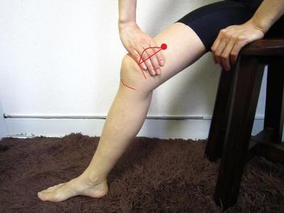 Perbaiki Peredaran Darah dengan Akupuntur