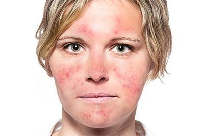 Sering Muncul Warna Kemerahan Pada Wajah? Waspadai Rosacea!