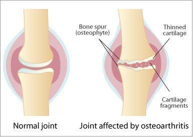 3. Osteoarthritis