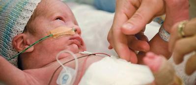 Jangan Salah Moms, Begini Cara Menyusui Bayi Prematur!