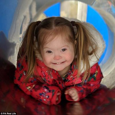 Hebat! Gadis Cilik Penderita Down Syndrome Ini Bisa Jadi Model, Lho!