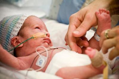 Waspada, Inilah Gangguan Kesehatan yang Rentan Menghampiri Bayi Prematur