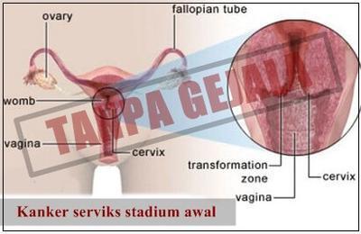 1. Gejala Stadium Awal
