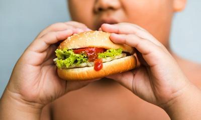 Moms, Begini Cara Menangani Anak yang Obesitas!