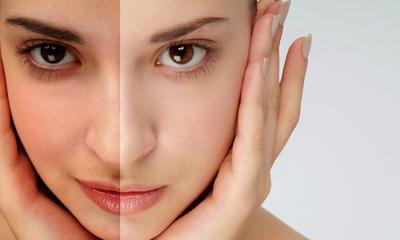 Ketahui 10 Bahan dalam Skincare yang Aman untuk Memutihkan Kulit