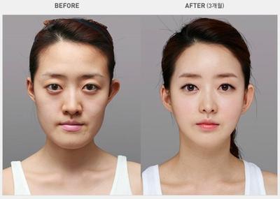 Terkenal Sebagai Negara Paling Ahli, Ini 7 Jenis Operasi Plastik yang Paling Laku di Korea Selatan!