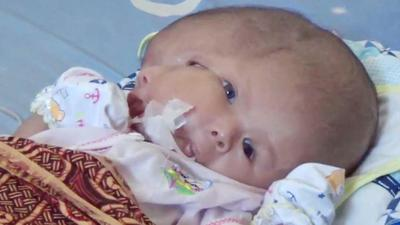 Fakta Seputar Kelahiran Gilang Andika, Bayi dengan 2 Wajah Asal Batam