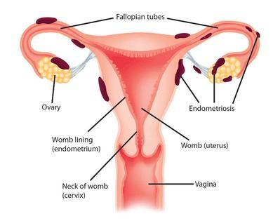 3. Endometriosis