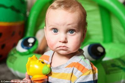 Tragis, Bayi Tampan Ini Memiliki 50 Jenis Alergi Berbahaya di Tubuhnya