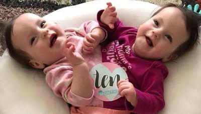 Moms Mengalami Tanda-Tanda Berikut Ini? Jangan-Jangan Anda Sedang Hamil Anak Kembar!