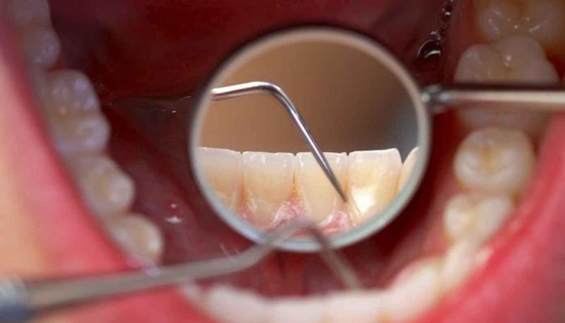 Penting Untuk Kesehatan Gigi Mulut Ketahui Biaya Membersihkan