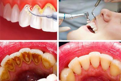 Penting untuk Kesehatan Gigi & Mulut, Ketahui Biaya Membersihkan Karang Gigi (Scaling) di Dokter Gigi