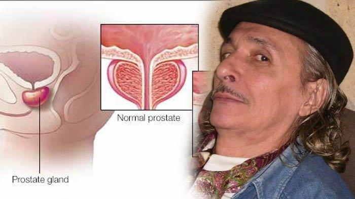 prostat itu apa ya