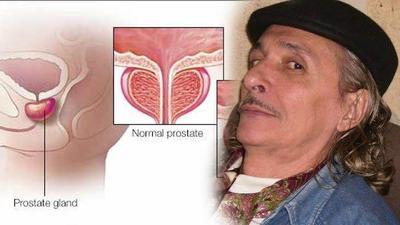 Kenali Apa Itu Kanker Prostat, Ketahui Gejala dan Usaha Pengobatannya