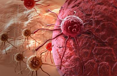 Mengatasi Kanker Usus Besar