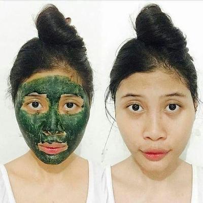 Efek Samping Masker Spirulina untuk Jerawat