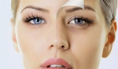 Tinggi Antioksidan, Bawang Hitam Ampuh Atasi Jerawat Hingga Cegah Penuaan Dini