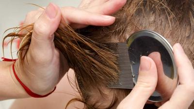 Ada Kutu di Rambut Si Kecil? Jangan Panik Moms, Ini Cara Menghilangkannya!