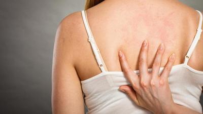 Bekas Jerawat di Punggung Menganggu Penampilan? Hilangkan dengan Cara Ini Moms!