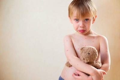 Penanganan Tepat untuk Anak yang Terkena Cacar Air, Ini Cara Merawatnya di Rumah