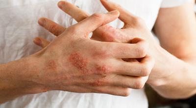 Gejala Penyakit Kulit Herpes