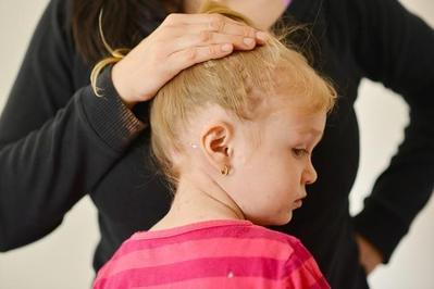 Jenis-jenis Penyakit Kulit Eksim yang Rentan Dialami Anak, Cari Tahu Yuk, Moms