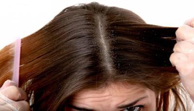 Katakan Tidak Pada Kutu Rambut, Ini 3 Cara Menghilangkan Telurnya