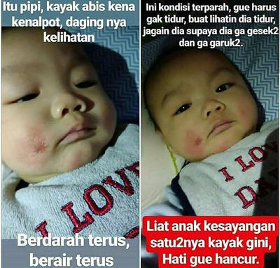 Kisah Viral Baby Ryu yang Terserang Dermatitis Atopik, Bagaimana Cara Perawatannya?