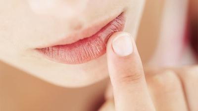 Tips Bibir Sehat, Ini 5 Kebiasaan yang Bisa Menjaga Kelembapan Bibir