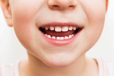 Mencegah Kerusakan Gigi