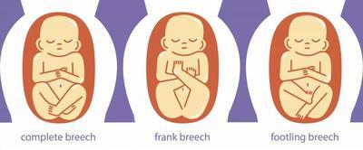 Wasapada Moms, Ini Tanda-Tanda Bayi Dalam Posisi Sungsang