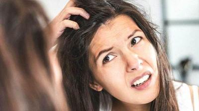 Hilangkan Ketombe dengan 5 Bahan Alami, Rambut Sehat Bebas Gatal!