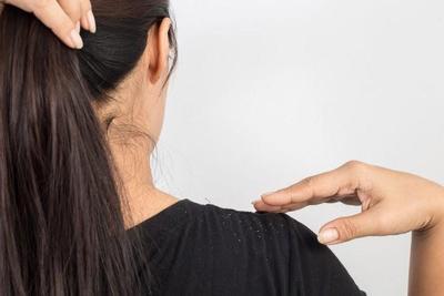 5 Rekomendasi Shampo Anti Ketombe untuk Rambut Indah dan Sehat