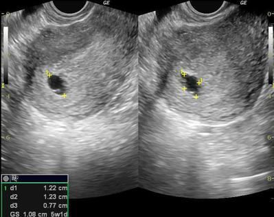 Pentingnya USG Selama Masa Kehamilan, Apa Saja Manfaatnya?