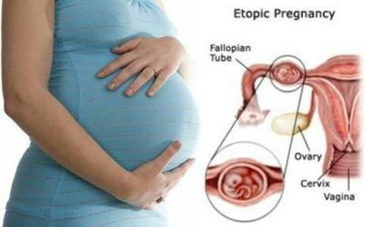 Perkembangan Janin 3 Bulan Tak Berjalan Lancar Apakah Bisa Jadi Gejala Kehamilan Ektopik